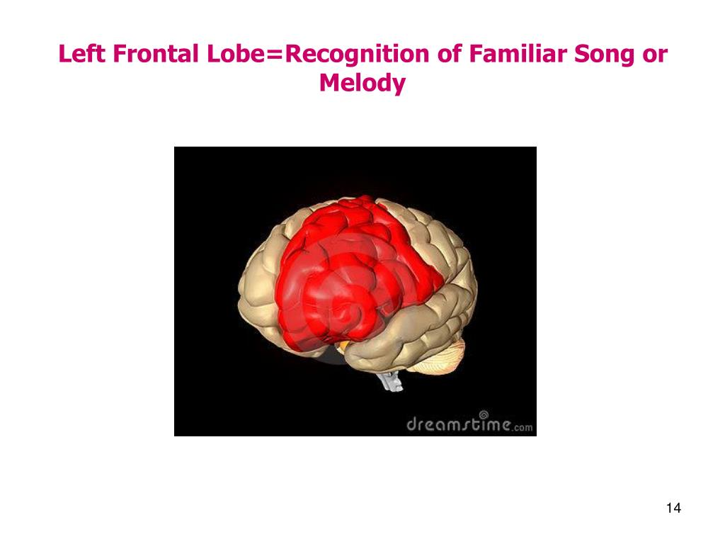 Left Frontal Lobe=Recognition of Familiar Song or Melody