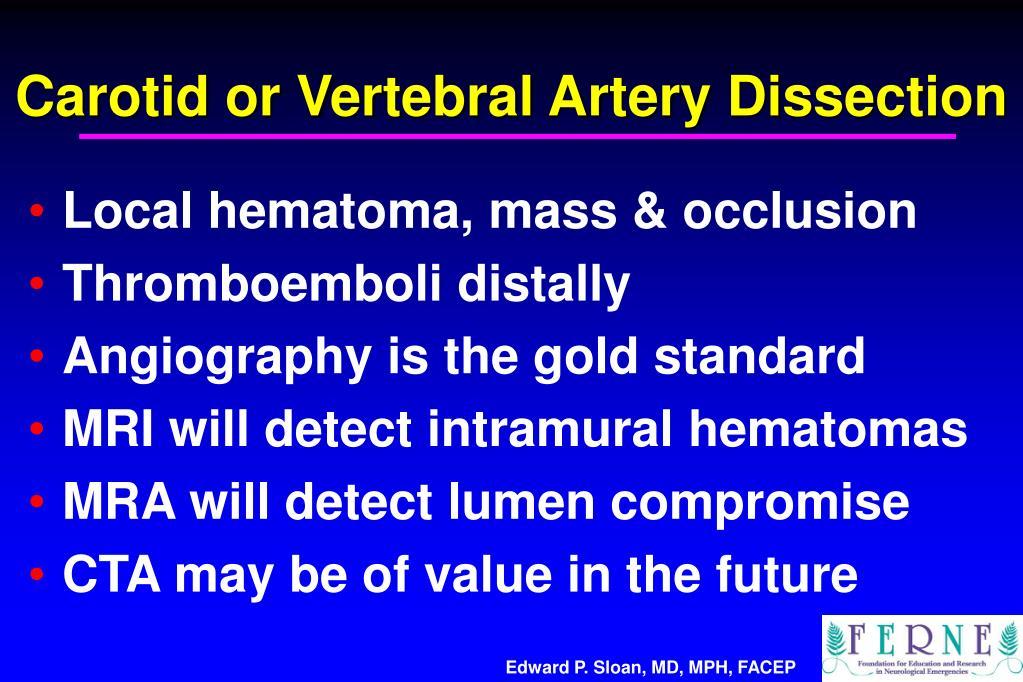 Carotid or Vertebral Artery Dissection