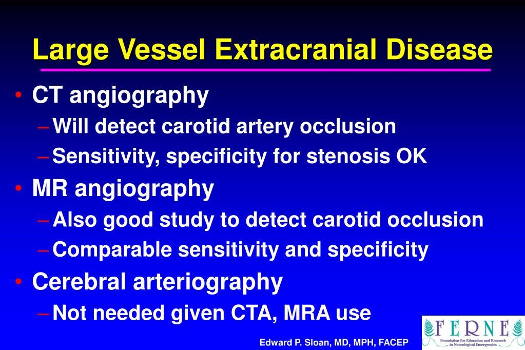 Large Vessel Extracranial Disease