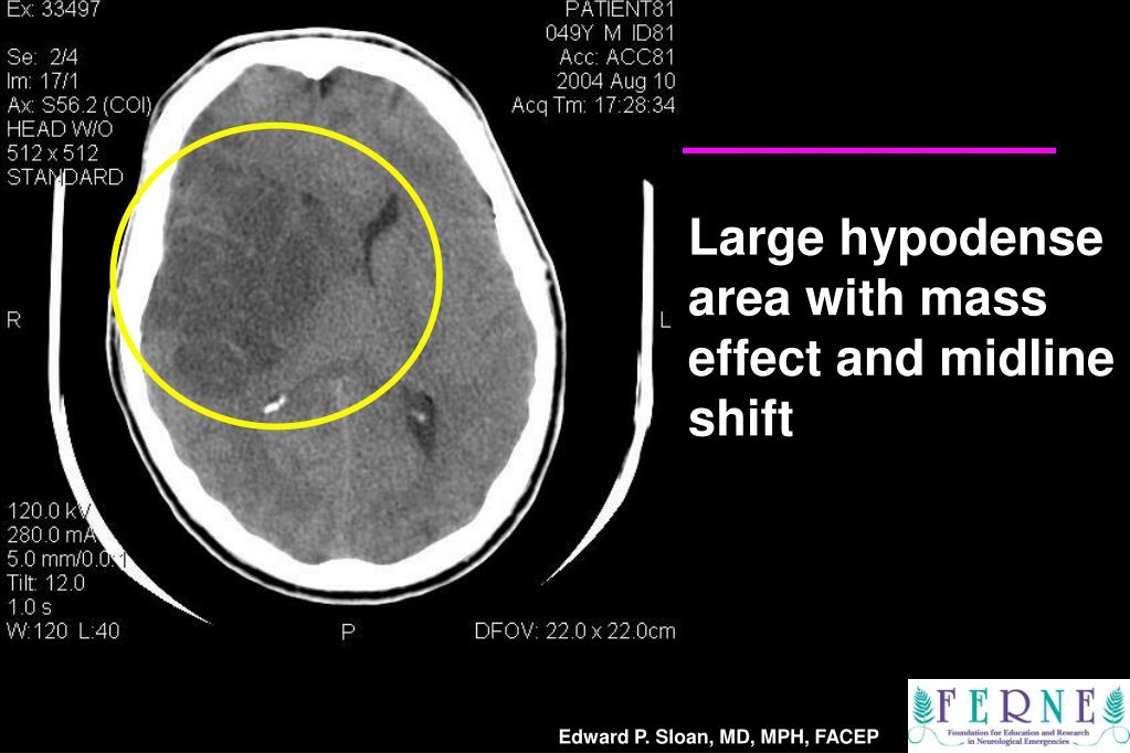 Large hypodense area with mass effect and midline shift