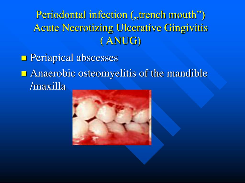 PATHOLOGY AND MANAGEMENT OF PERIODONTAL PROBLEMS IN ... |Necrotizing Ulcerative Gingivitis Histology