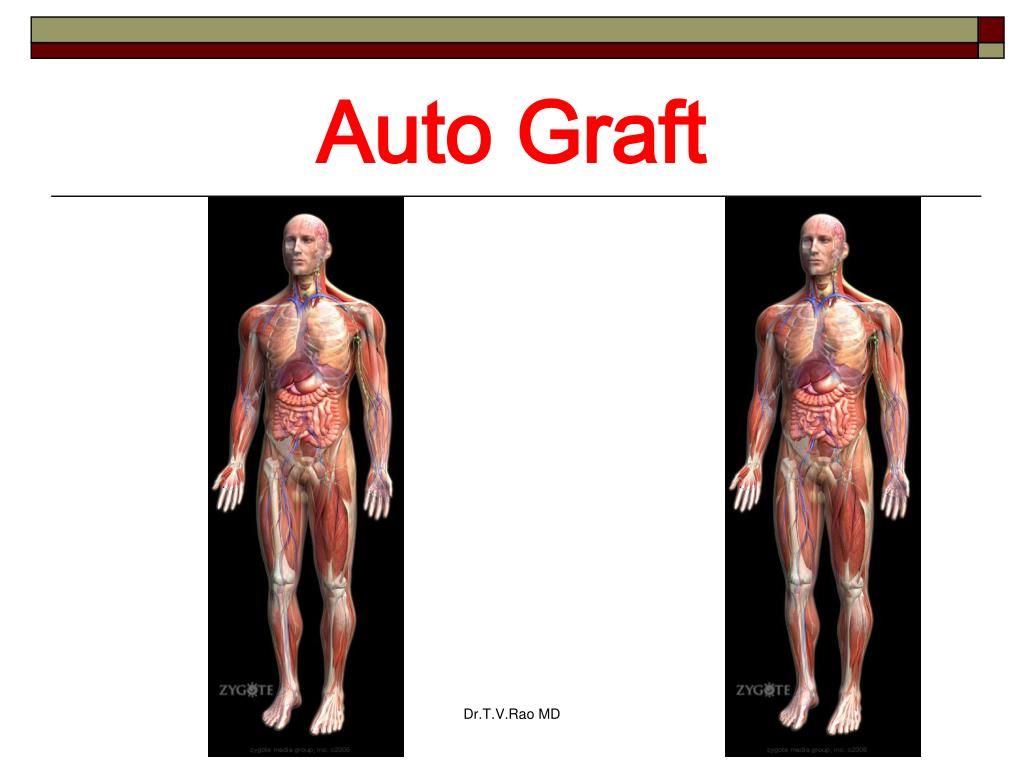 Auto Graft
