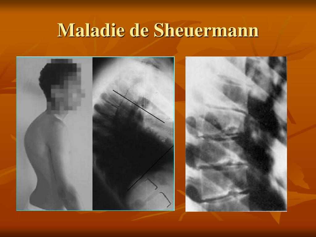 Maladie de Sheuermann