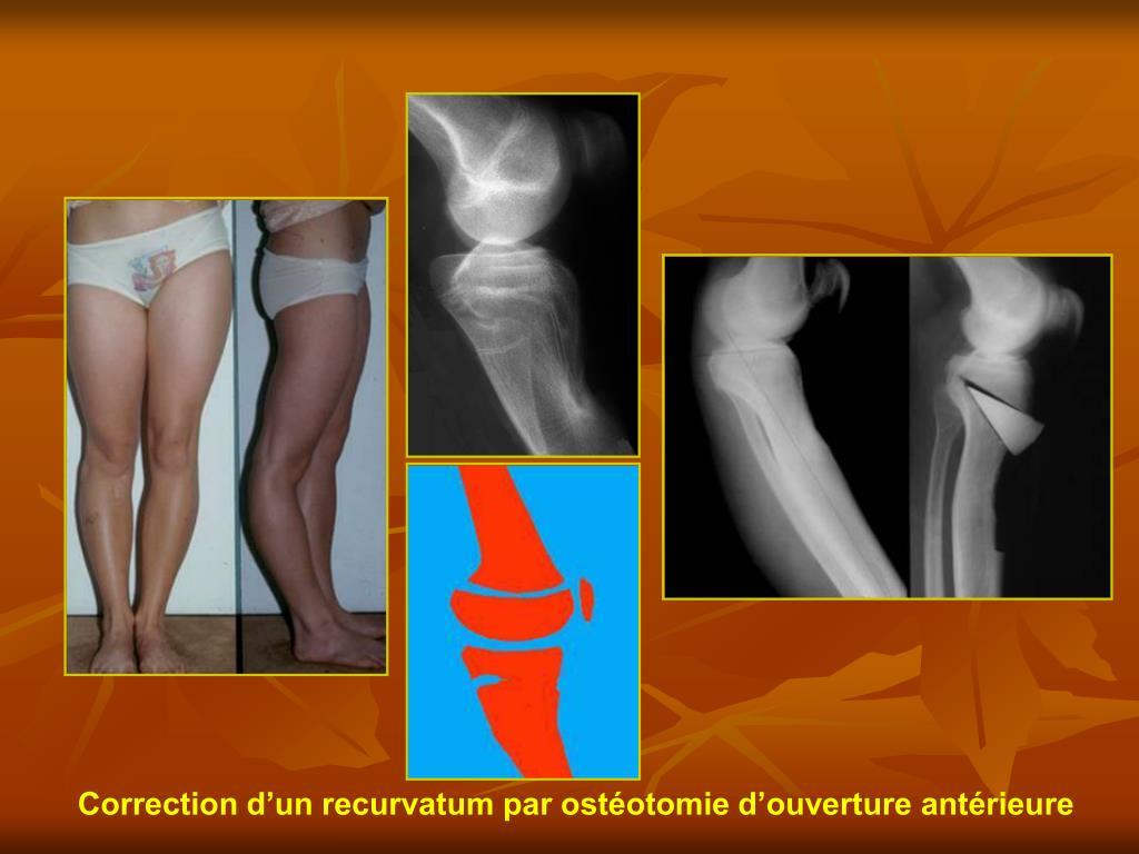 Correction d'un recurvatum par ostéotomie d'ouverture antérieure