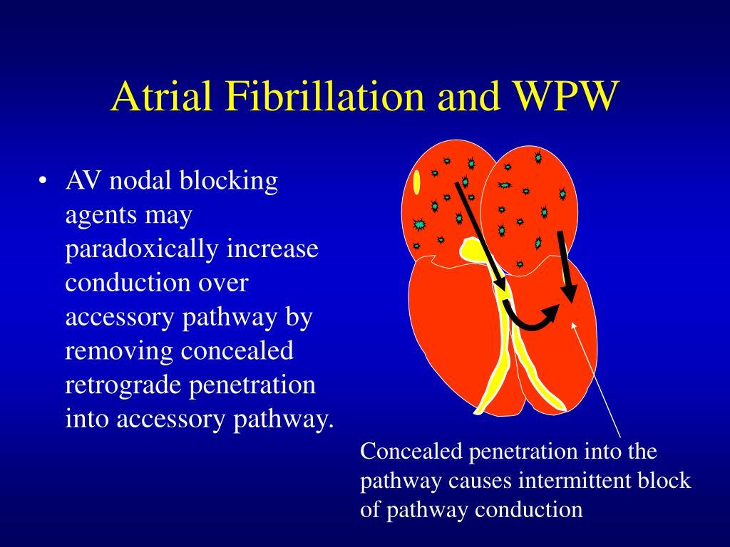 Atrial Fibrillation and WPW