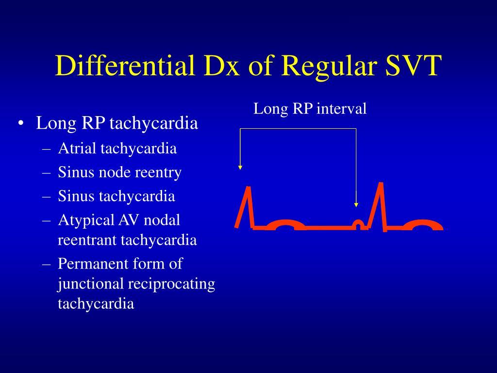 Differential Dx of Regular SVT