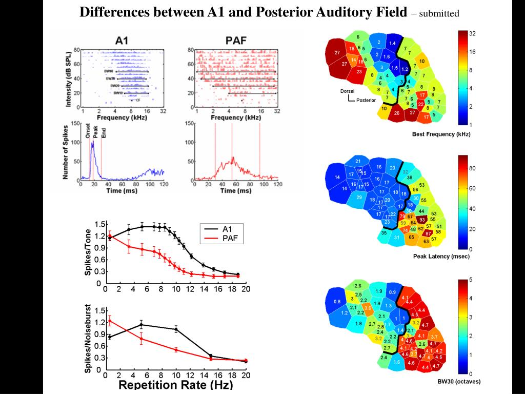 Differences between A1 and Posterior Auditory Field