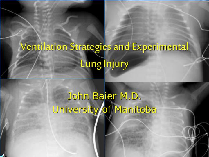 ventilation strategies and experimental lung injury n.