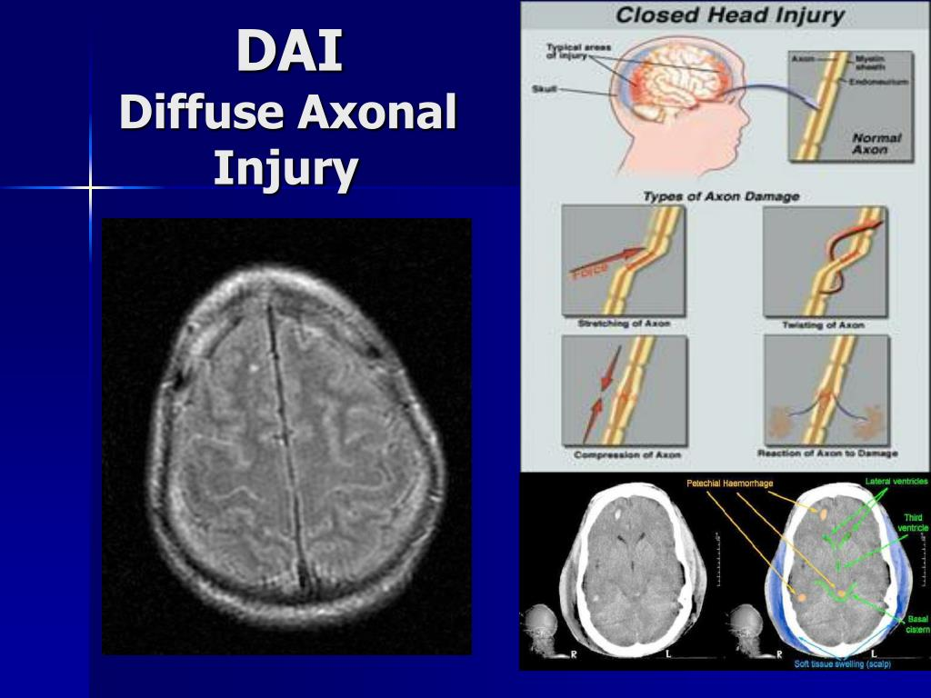 PPT - Traumatic Brain Injury A Case Study PowerPoint ...
