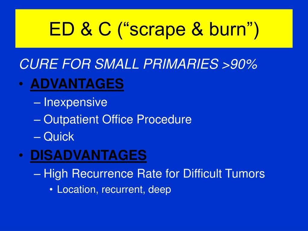 """ED & C (""""scrape & burn"""")"""