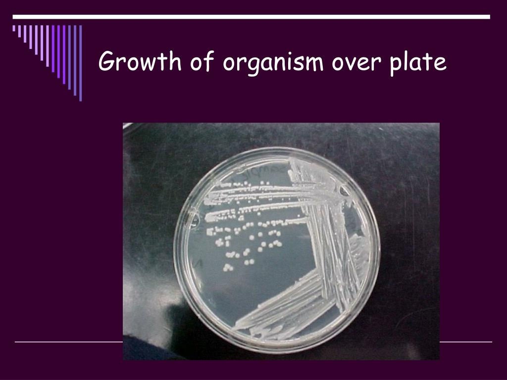 Growth of organism over plate
