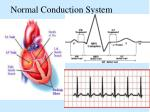 normal conduction system