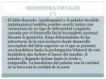hendidura faciales34
