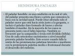 hendidura faciales35