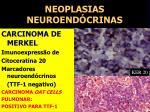 neoplasias neuroend crinas