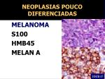 neoplasias pouco diferenciadas1