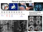 neural grafting in hd