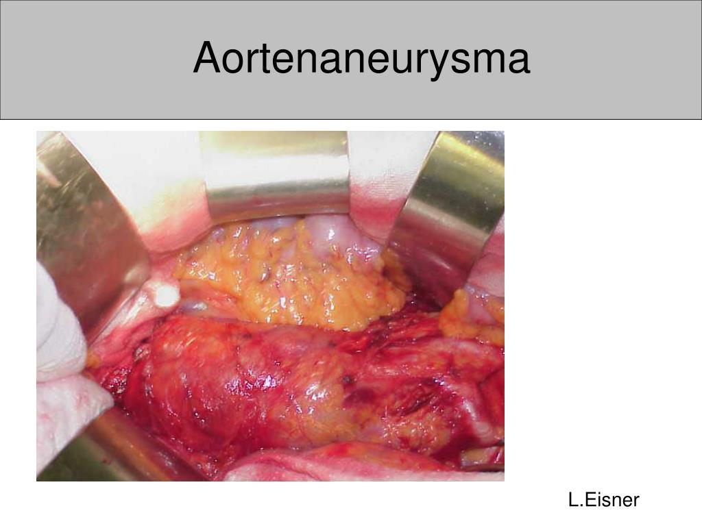 aortenaneurysma l.