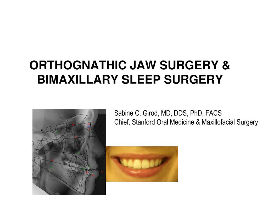 orthognathic jaw surgery bimaxillary sleep surgery l.