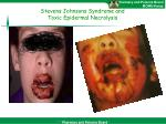 stevens johnsons syndrome and toxic epidermal necrolysis