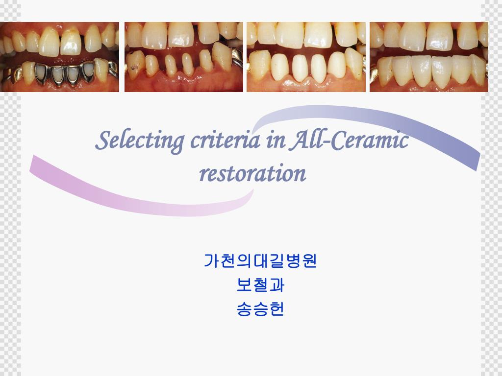 selecting criteria in all ceramic restoration l.
