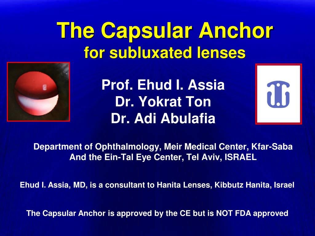 the capsular anchor for subluxated lenses l.