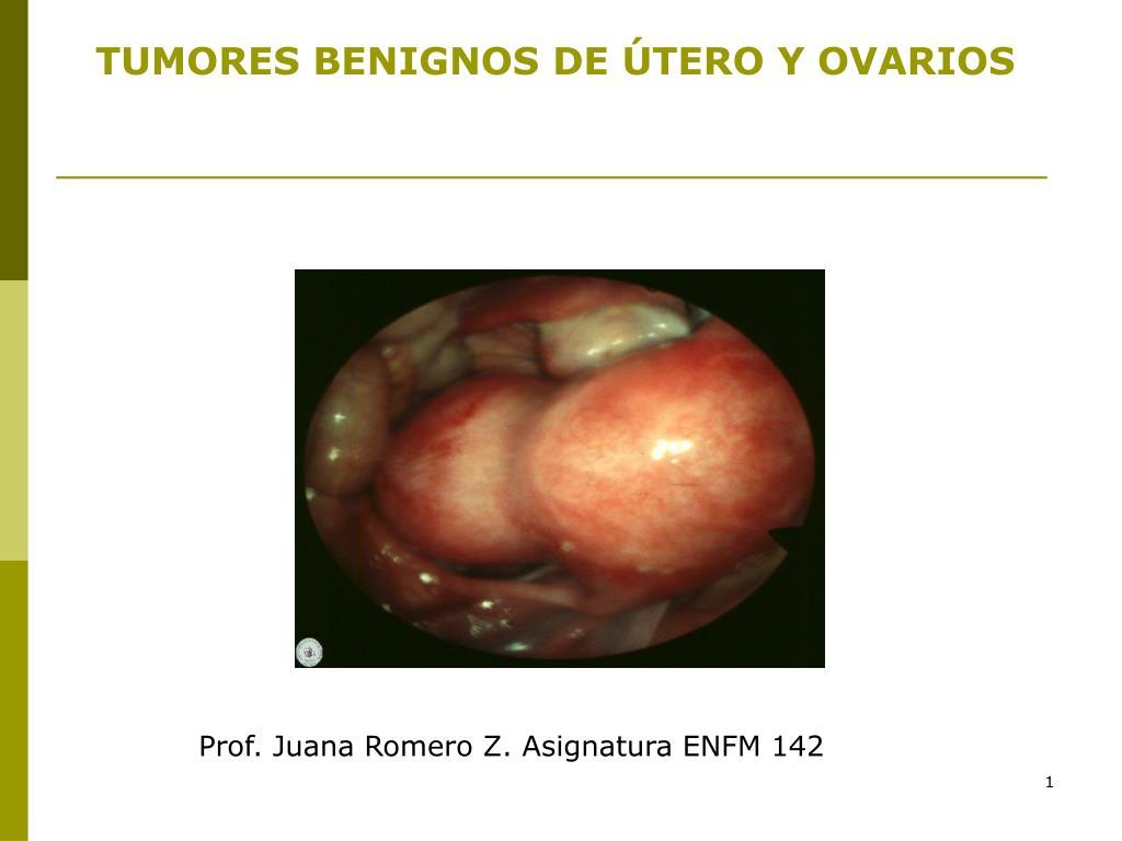 PPT - TUMORES BENIGNOS DE ÚTERO Y OVARIOS PowerPoint Presentation ...