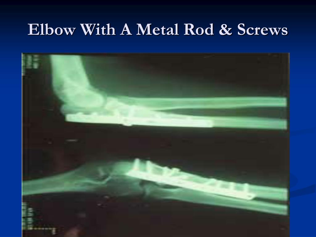 Elbow With A Metal Rod & Screws