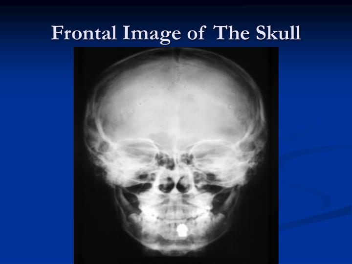 Frontal image of the skull
