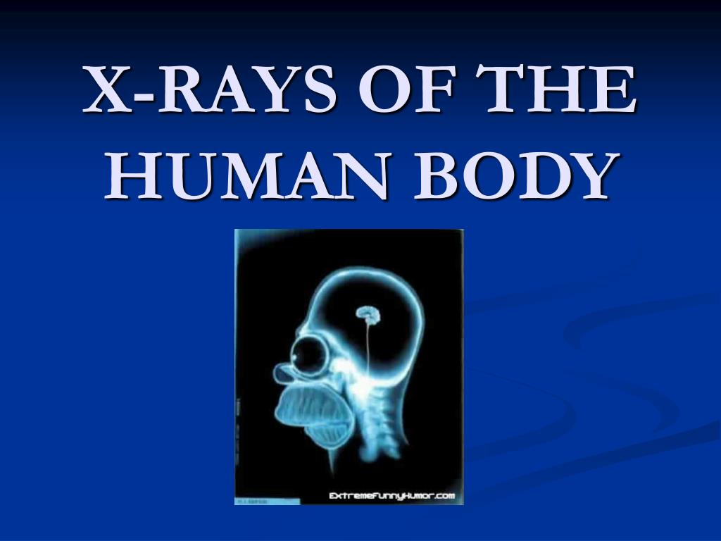 x rays of the human body l.