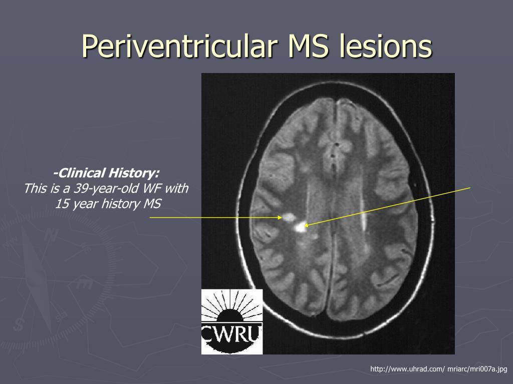 Periventricular MS lesions