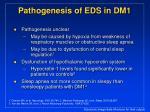 pathogenesis of eds in dm1