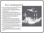eco cardiograma