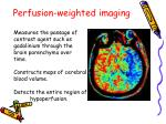 perfusion weighted imaging