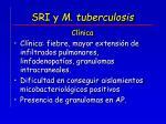 sri y m tuberculosis16