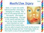 mouth jaw injury