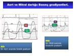 aort ve mitral darl bas n gradiyentleri