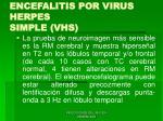 encefalitis por virus herpes simple vhs46