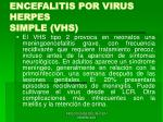 encefalitis por virus herpes simple vhs49
