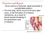 fracture and repair59