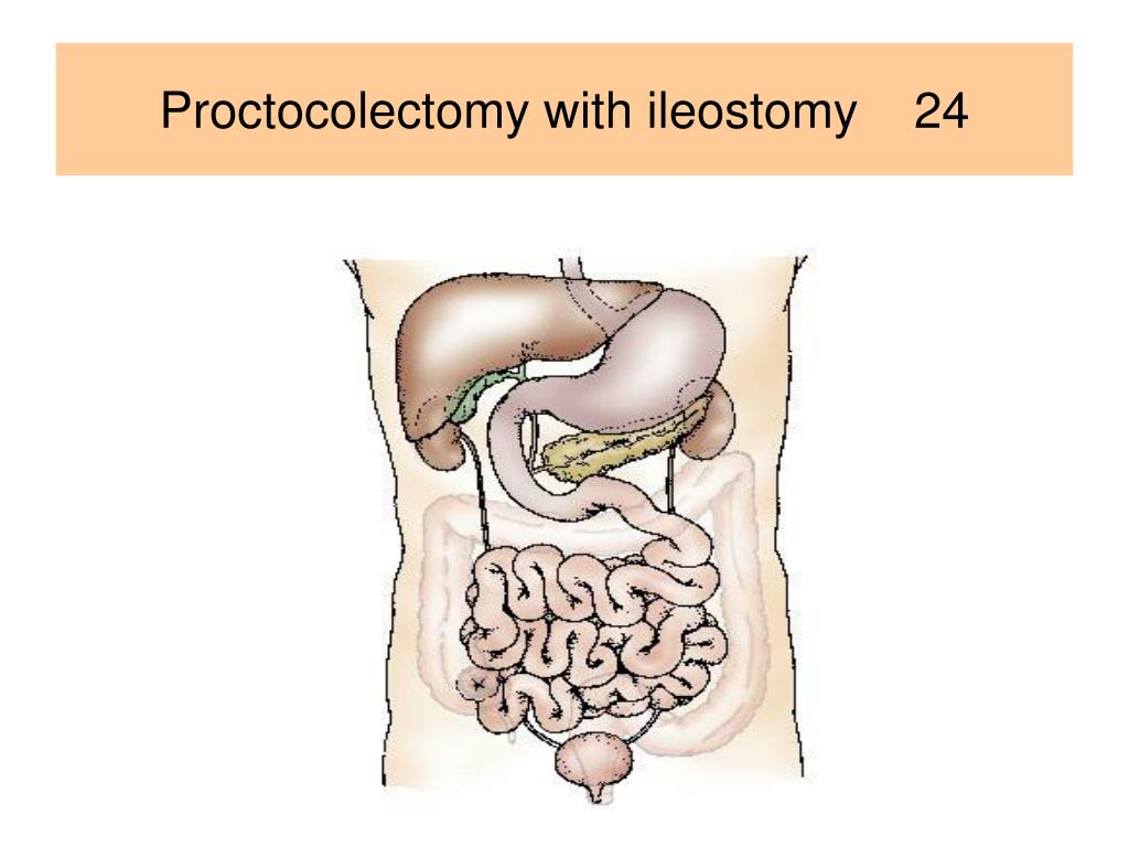 Proctocolectomy with ileostomy    24