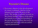 peyronie s disease