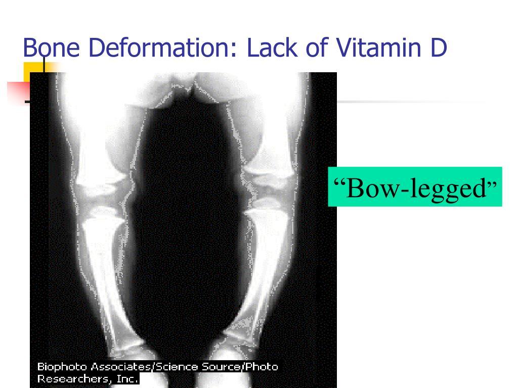 Bone Deformation: Lack of Vitamin D