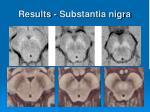 results substantia nigra