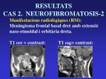 resultats cas 2 neurofibromatosis 211