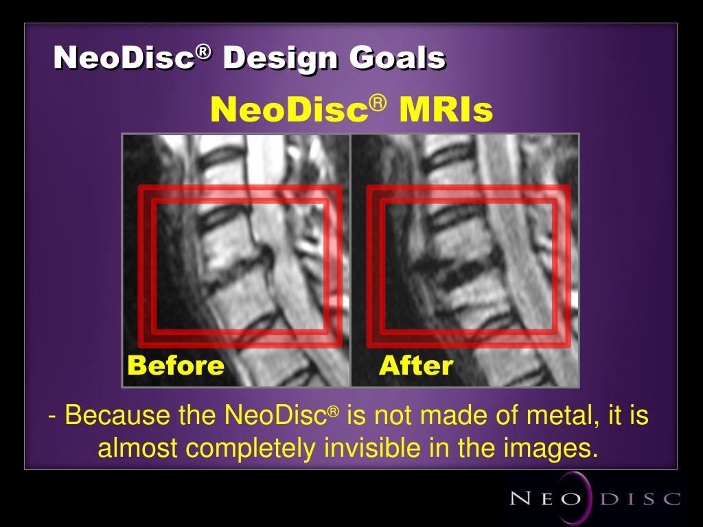 NeoDisc