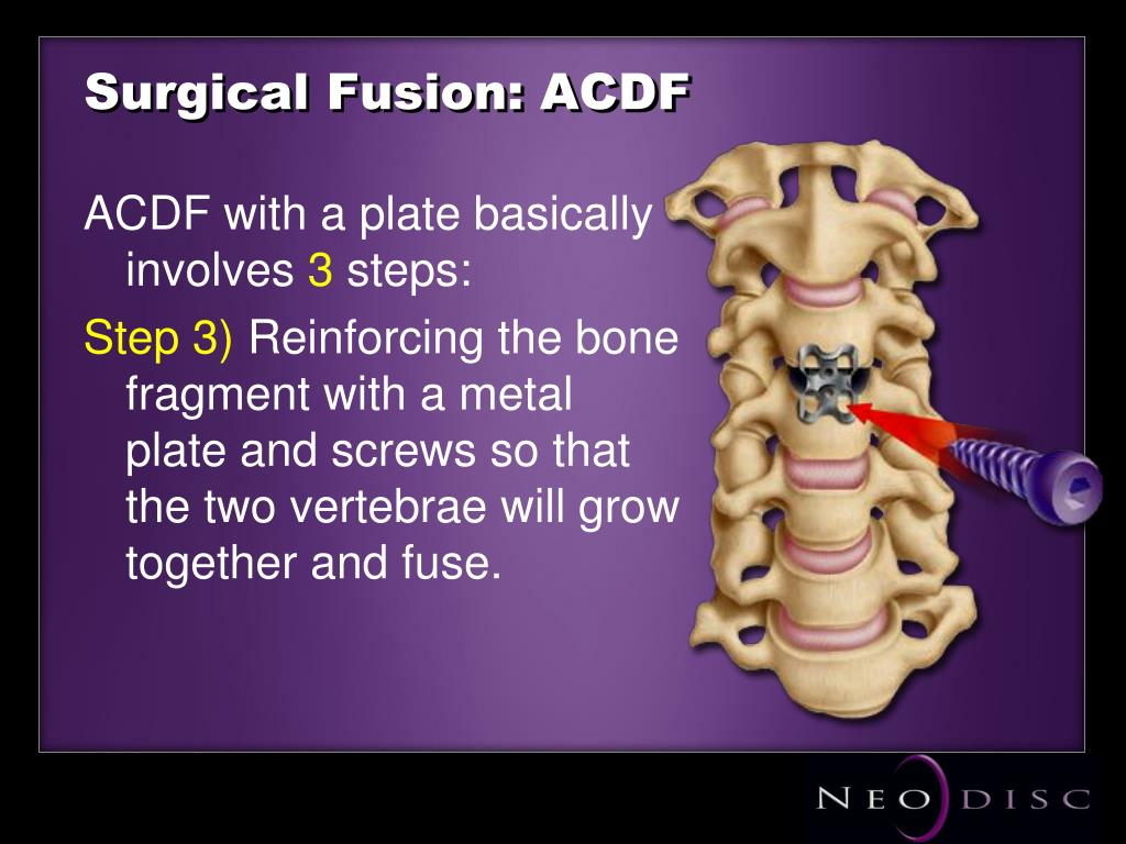 Surgical Fusion: ACDF