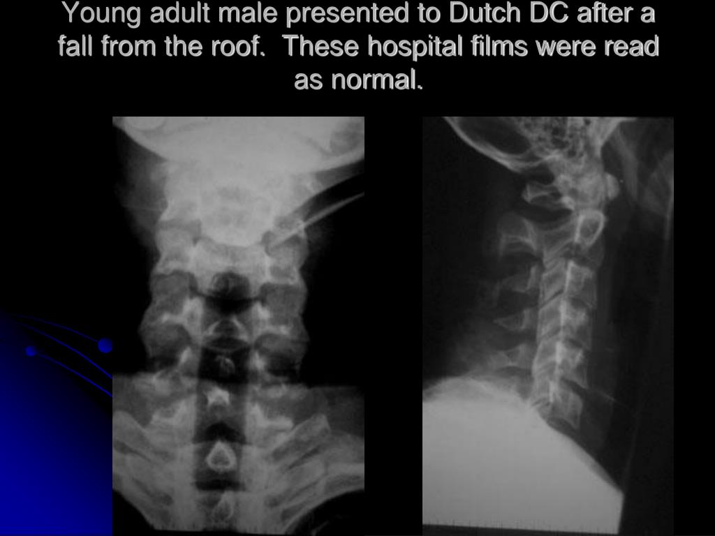 Young adult male presented to Dutch DC after a fall from the roof.  These hospital films were read as normal.