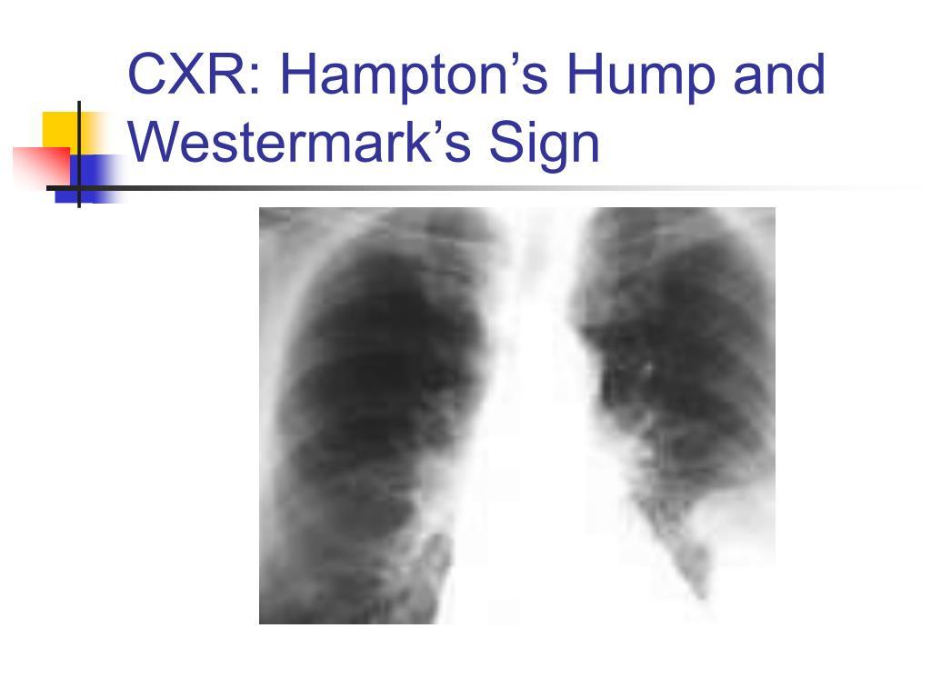 CXR: Hampton's Hump and Westermark's Sign