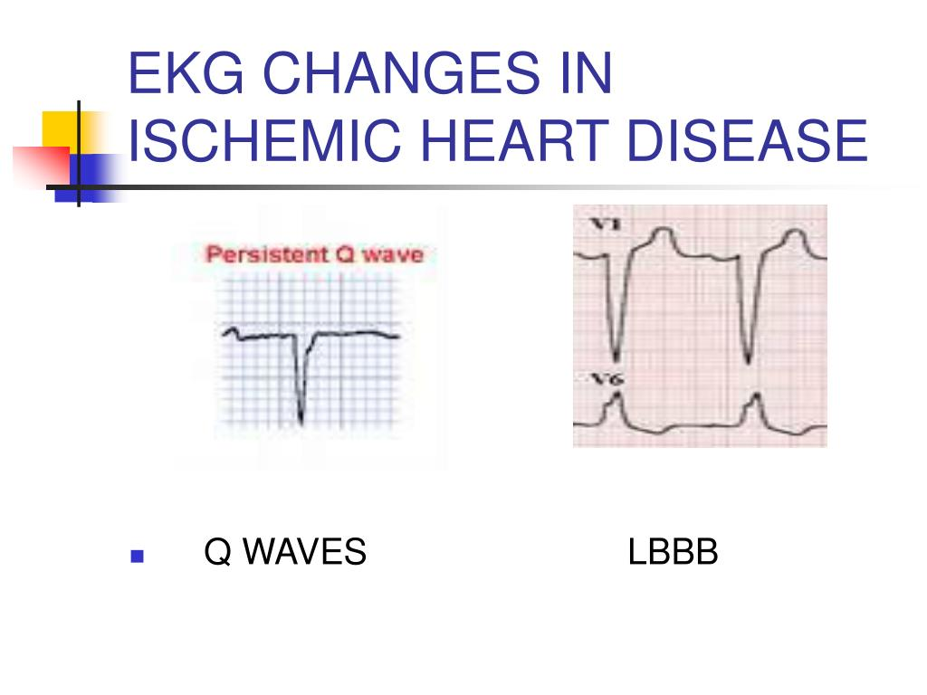 EKG CHANGES IN ISCHEMIC HEART DISEASE